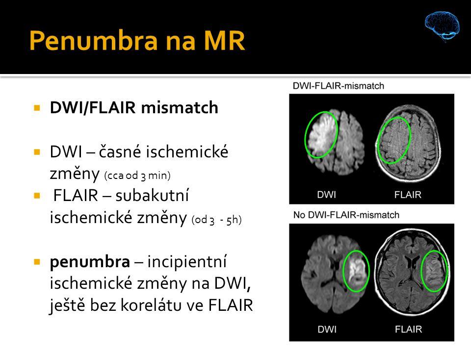 Penumbra na MR  DWI/FLAIR mismatch  DWI – časné ischemické změny (cca od 3 min)  FLAIR – subakutní ischemické změny (od 3 - 5h)  penumbra – incipientní ischemické změny na DWI, ještě bez korelátu ve FLAIR