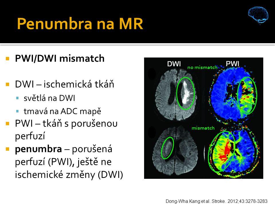 Penumbra na MR  PWI/DWI mismatch  DWI – ischemická tkáň  světlá na DWI  tmavá na ADC mapě  PWI – tkáň s porušenou perfuzí  penumbra – porušená perfuzí (PWI), ještě ne ischemické změny (DWI) Dong-Wha Kang et al.