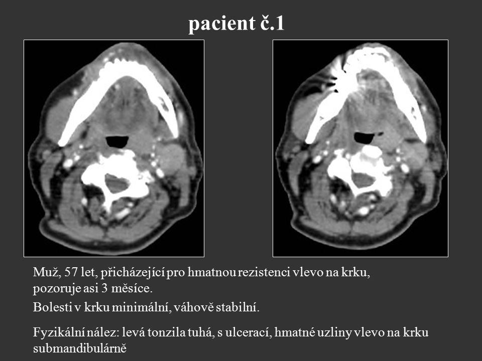 pacient č.1 Muž, 57 let, přicházející pro hmatnou rezistenci vlevo na krku, pozoruje asi 3 měsíce. Bolesti v krku minimální, váhově stabilní. Fyzikáln