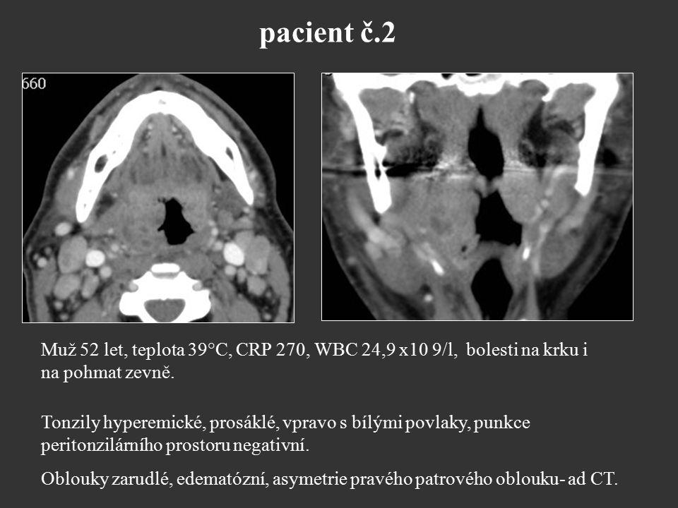 pacient č.2 Muž 52 let, teplota 39°C, CRP 270, WBC 24,9 x10 9/l, bolesti na krku i na pohmat zevně. Tonzily hyperemické, prosáklé, vpravo s bílými pov