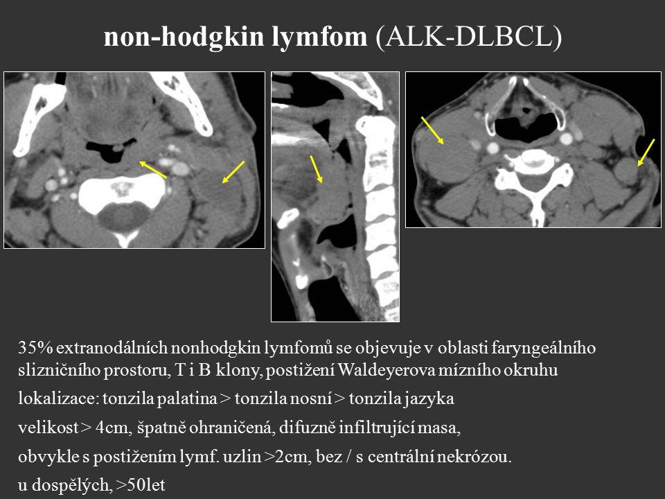 non-hodgkin lymfom (ALK-DLBCL) 35% extranodálních nonhodgkin lymfomů se objevuje v oblasti faryngeálního slizničního prostoru, T i B klony, postižení