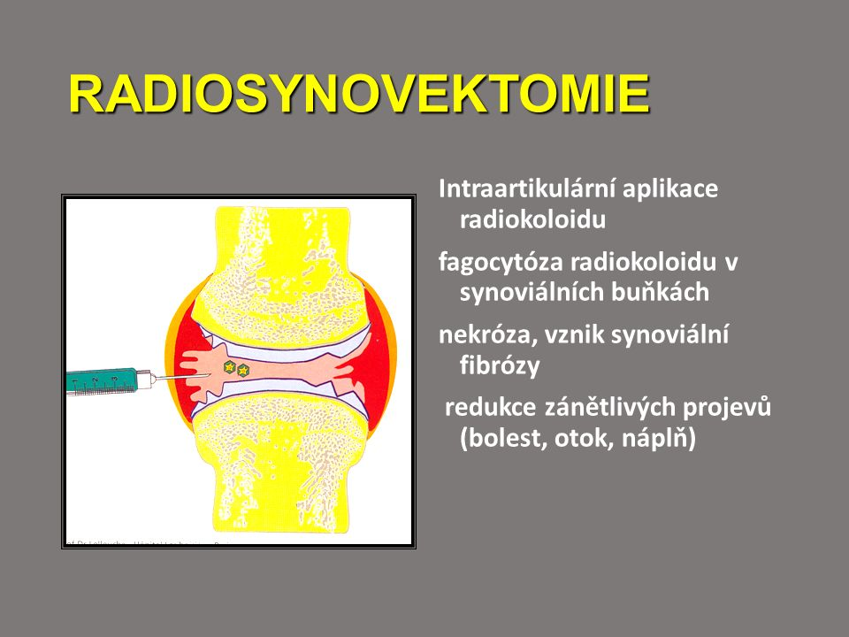 RADIOSYNOVEKTOMIE Intraartikulární aplikace radiokoloidu fagocytóza radiokoloidu v synoviálních buňkách nekróza, vznik synoviální fibrózy redukce záně