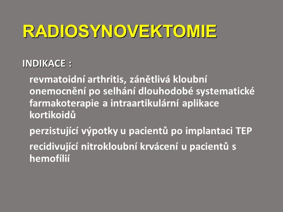 RADIOSYNOVEKTOMIE INDIKACE : revmatoidní arthritis, zánětlivá kloubní onemocnění po selhání dlouhodobé systematické farmakoterapie a intraartikulární aplikace kortikoidů perzistující výpotky u pacientů po implantaci TEP recidivující nitrokloubní krvácení u pacientů s hemofílií