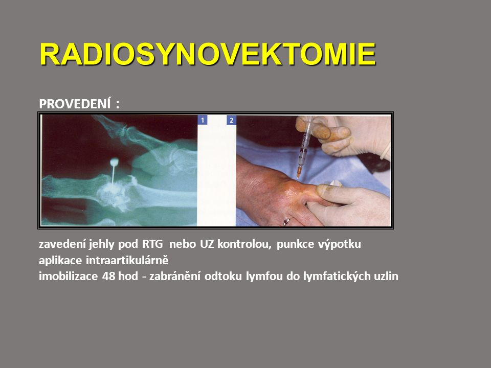 RADIOSYNOVEKTOMIE PROVEDENÍ : zavedení jehly pod RTG nebo UZ kontrolou, punkce výpotku aplikace intraartikulárně imobilizace 48 hod - zabránění odtoku lymfou do lymfatických uzlin