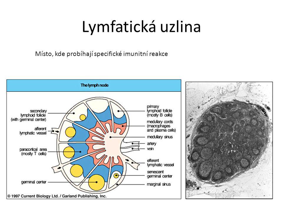 Lymfatická uzlina Místo, kde probíhají specifické imunitní reakce