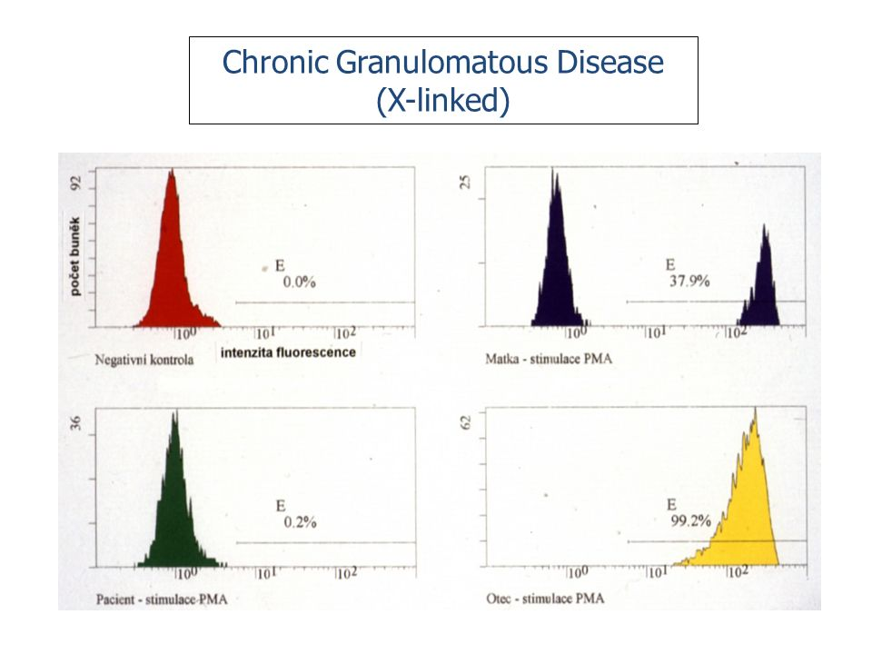 Chronic Granulomatous Disease (X-linked)