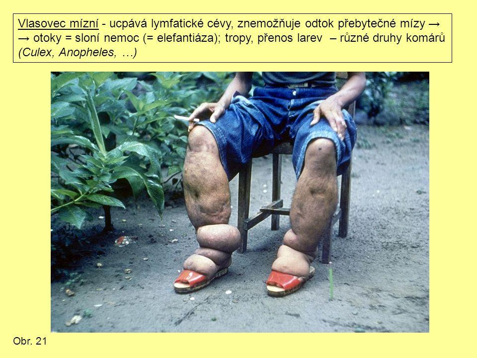 Vlasovec mízní - ucpává lymfatické cévy, znemožňuje odtok přebytečné mízy → → otoky = sloní nemoc (= elefantiáza); tropy, přenos larev – různé druhy komárů (Culex, Anopheles, …) Obr.