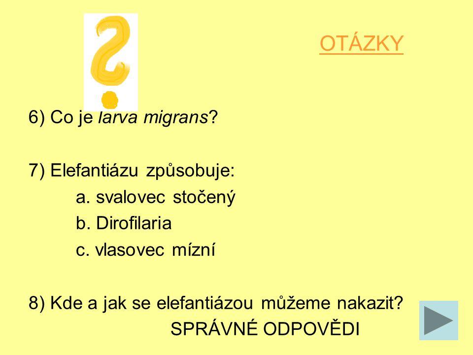 OTÁZKY 6) Co je larva migrans. 7) Elefantiázu způsobuje: a.
