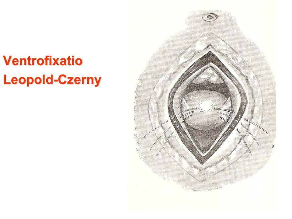 VentrofixatioLeopold-Czerny