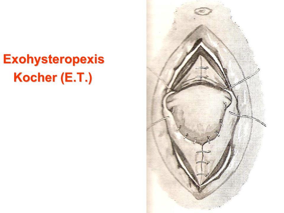 Exohysteropexis Kocher (E.T.) Kocher (E.T.)