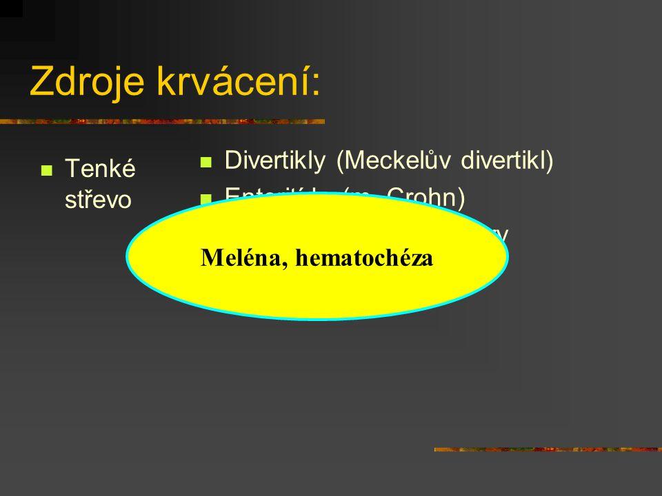 Zdroje krvácení: Tenké střevo Divertikly (Meckelův divertikl) Enteritída (m. Crohn) Benigní a maligní nádory Meléna, hematochéza