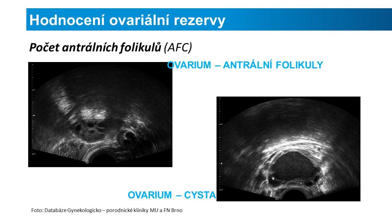 Hodnocení ovariální rezervy Počet antrálních folikulů (AFC) OVARIUM – ANTRÁLNÍ FOLIKULY OVARIUM – CYSTA Foto: Databáze Gynekologicko – porodnické kliniky MU a FN Brno