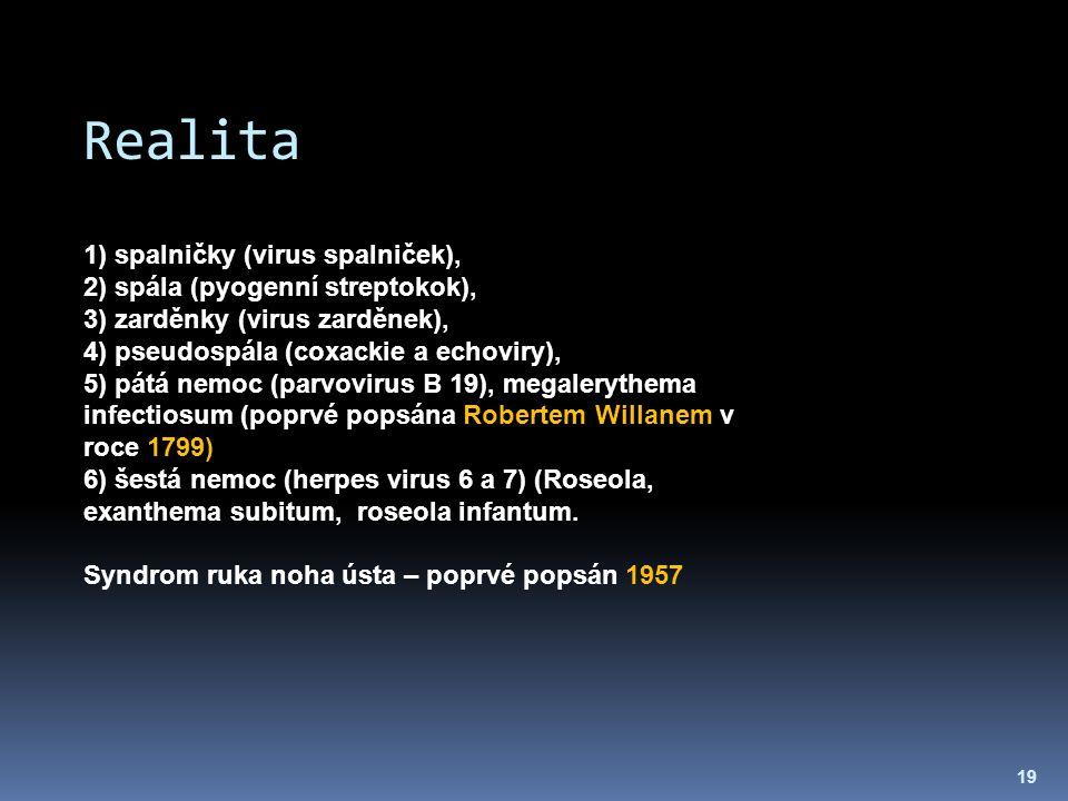 Realita 19 1) spalničky (virus spalniček), 2) spála (pyogenní streptokok), 3) zarděnky (virus zarděnek), 4) pseudospála (coxackie a echoviry), 5) pátá