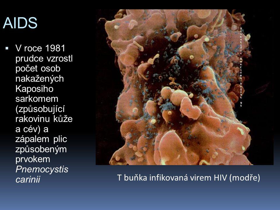 AIDS  V roce 1981 prudce vzrostl počet osob nakažených Kaposiho sarkomem (způsobující rakovinu kůže a cév) a zápalem plic způsobeným prvokem Pnemocystis carinii T buňka infikovaná virem HIV (modře)