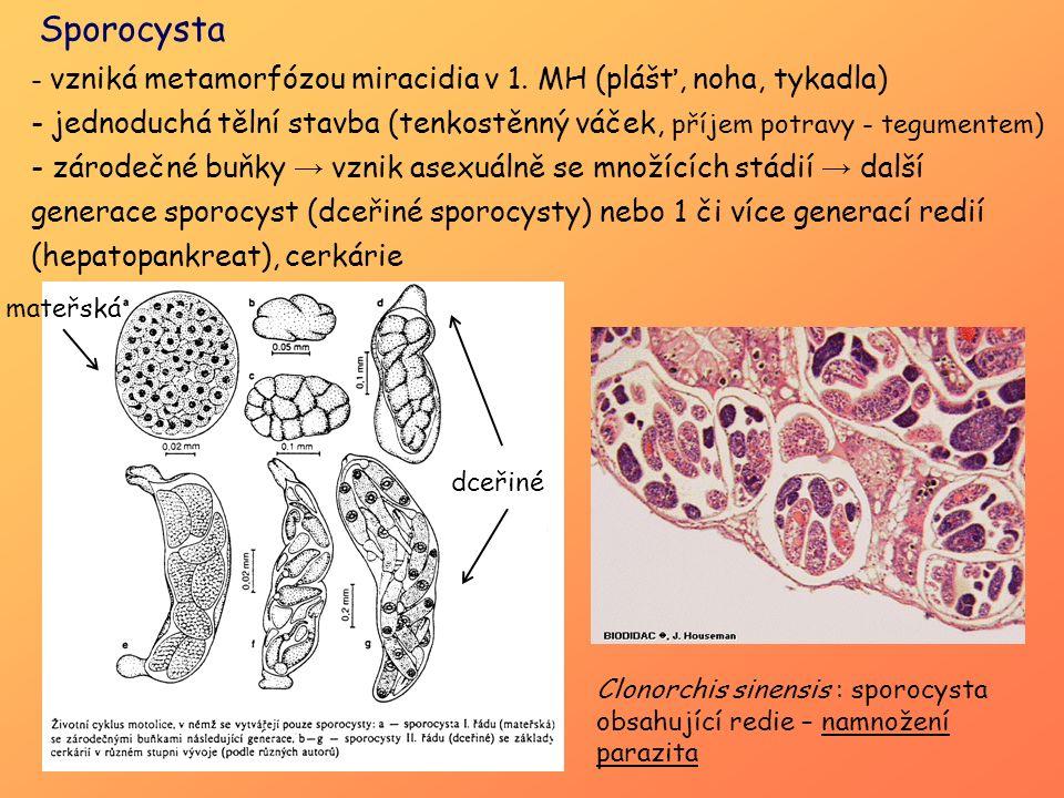 Sporocysta - vzniká metamorfózou miracidia v 1. MH (plášť, noha, tykadla) - jednoduchá tělní stavba (tenkostěnný váček, příjem potravy - tegumentem) -