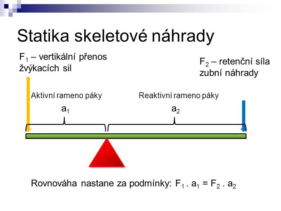 Statika skeletové náhrady F 1 – vertikální přenos žvýkacích sil F 2 – retenční síla zubní náhrady Rovnováha nastane za podmínky: F 1.