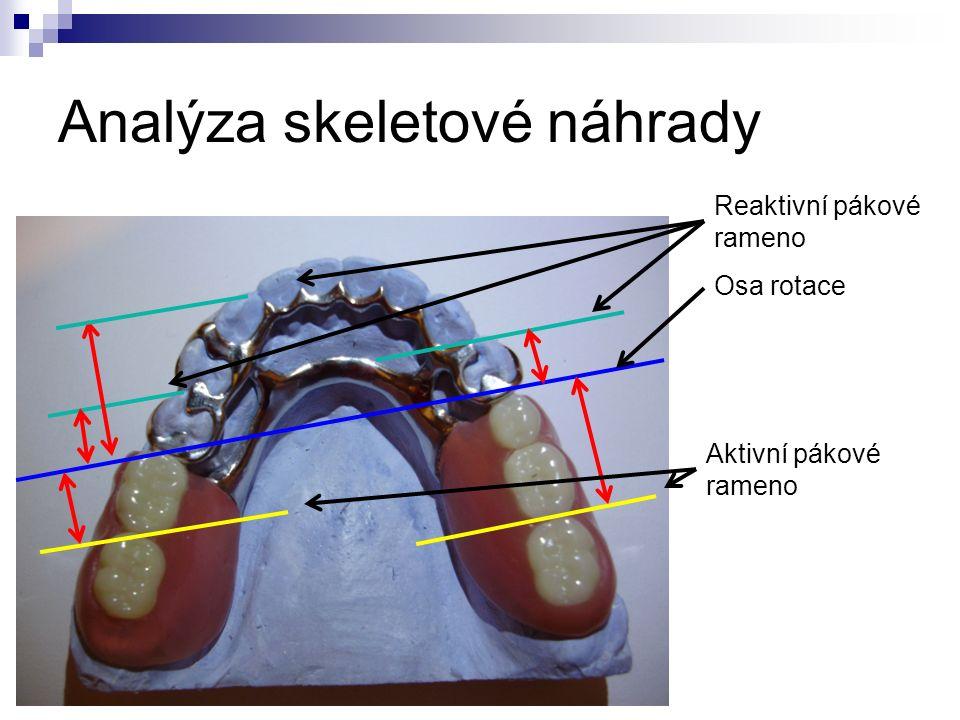 Analýza skeletové náhrady Osa rotace Reaktivní pákové rameno Aktivní pákové rameno