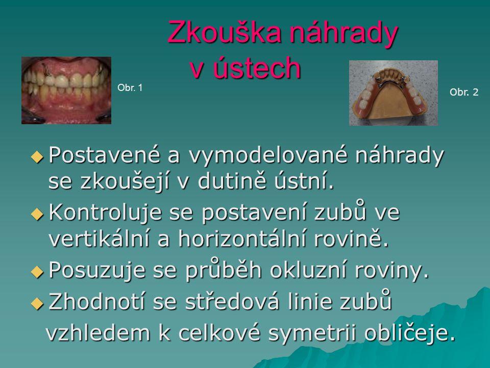 Zkouška náhrady v ústech Zkouška náhrady v ústech  Postavené a vymodelované náhrady se zkoušejí v dutině ústní.