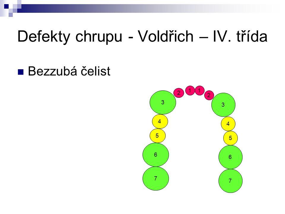 Defekty chrupu - Voldřich – IV. třída Bezzubá čelist 5 4 2 3 6 7 5 4 2 3 6 7 11