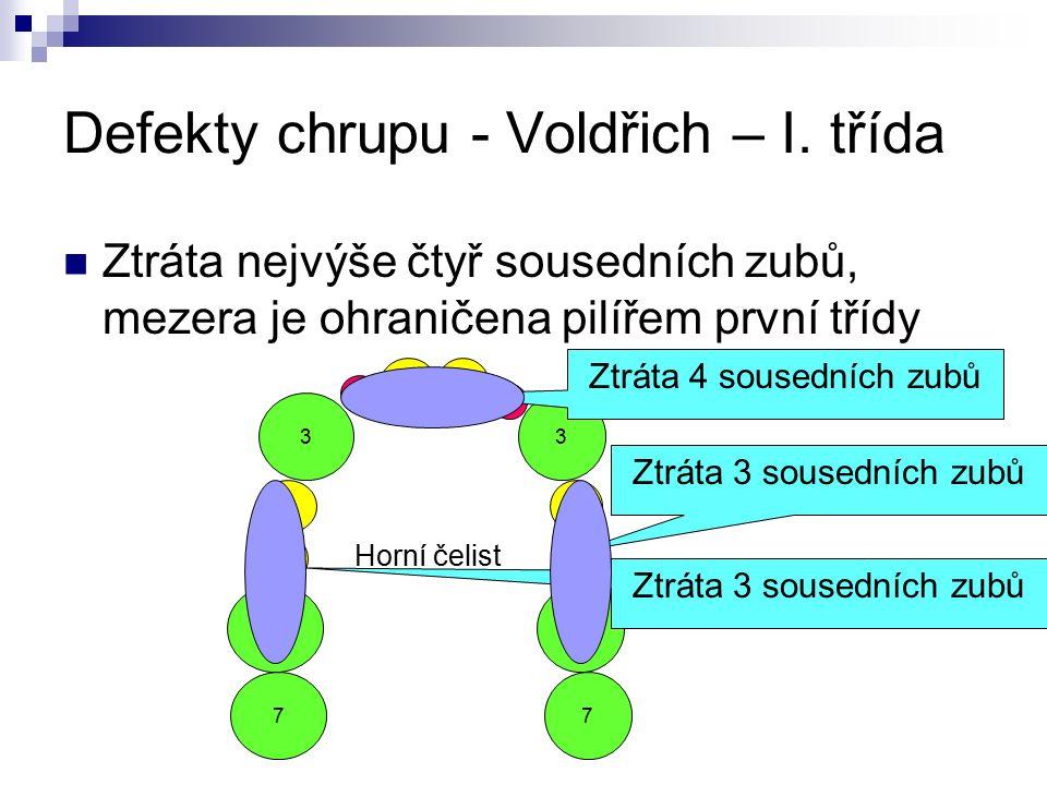 Defekty chrupu - Voldřich – I. třída Ztráta nejvýše čtyř sousedních zubů, mezera je ohraničena pilířem první třídy 1 5 4 2 3 6 7 1 5 4 2 3 Horní čelis