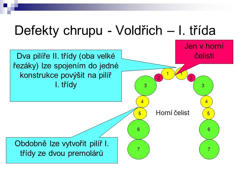 Defekty chrupu - Voldřich – I. třída 1 5 4 2 3 6 7 1 5 4 2 3 Horní čelist 7 6 Dva pilíře II. třídy (oba velké řezáky) lze spojením do jedné konstrukce