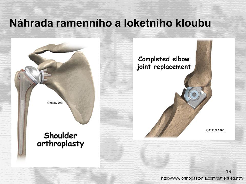 19 Náhrada ramenního a loketního kloubu http://www.orthogastonia.com/patient-ed.html