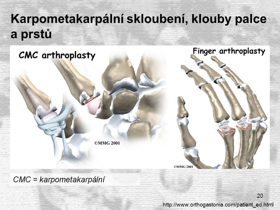 20 Karpometakarpální skloubení, klouby palce a prstů http://www.orthogastonia.com/patient_ed.html CMC = karpometakarpální