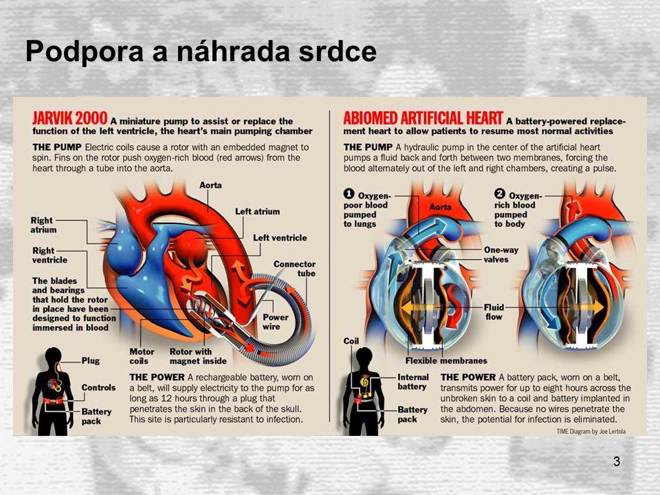 3 Podpora a náhrada srdce