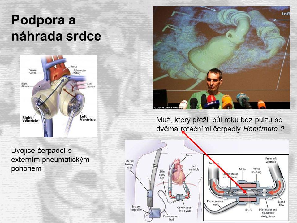 5  V průběhu velkých chirurgických výkonů na srdci nebo plících je často nutné nahradit funkci těchto orgánů mimotělním zařízením.