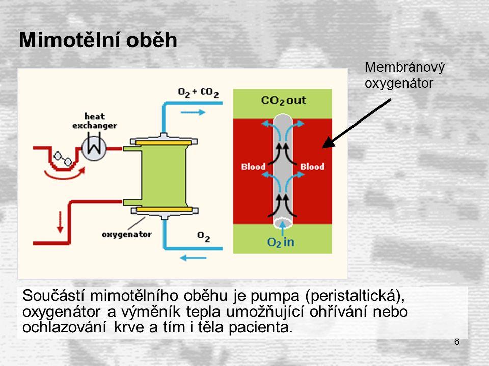 6 Součástí mimotělního oběhu je pumpa (peristaltická), oxygenátor a výměník tepla umožňující ohřívání nebo ochlazování krve a tím i těla pacienta.