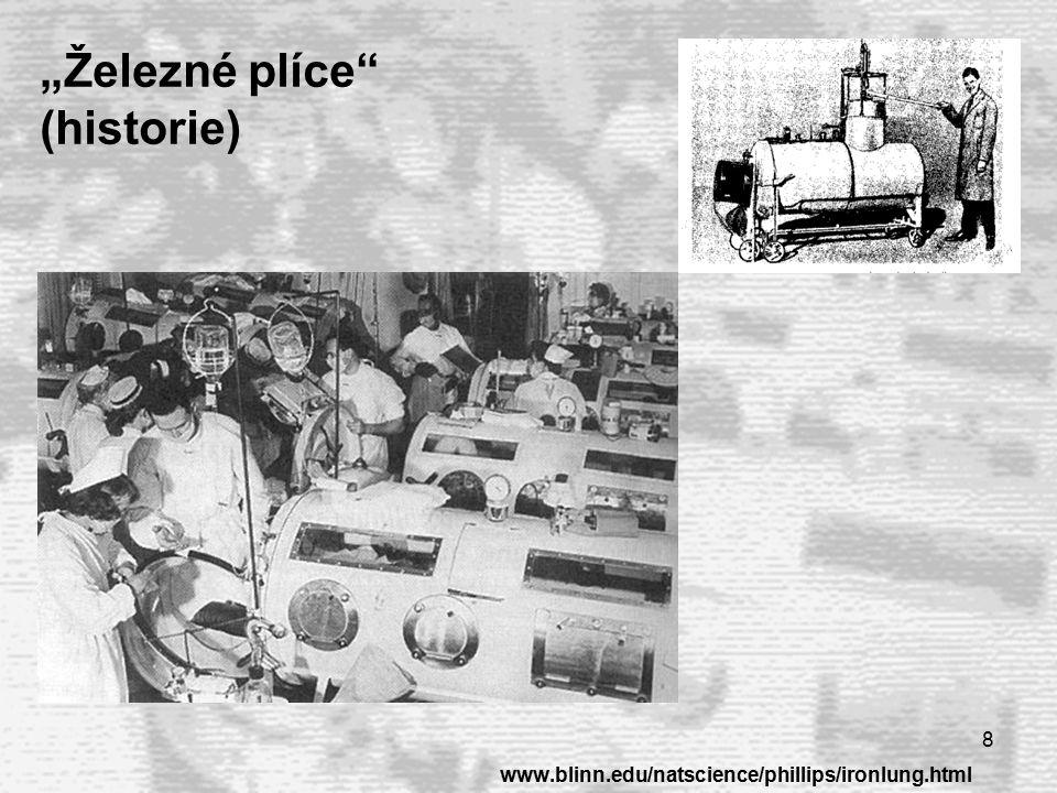 9 Mechanická ventilace plic  Ventilace se provádí podle nastaveného tlakového nebo objemového limitu vzduchu http://www.mtsinai.org/pulmonary/books/physiology/chap10a.htm