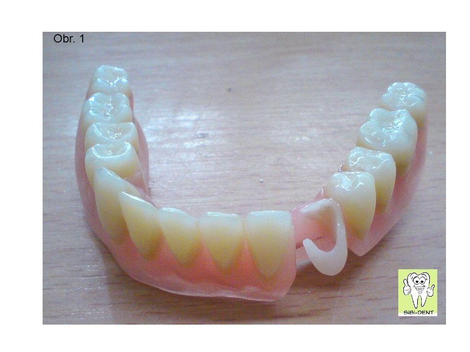 Dočasná desková náhrada Jedná se o nejjednodušší typ snímatelné náhrady, retenčním mechanismem jsou prosté drátěné spony, kterými drží vlastní protéza na zbývajících zubech.