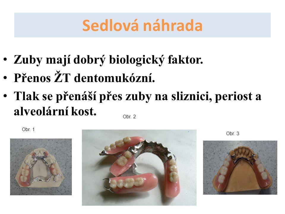 Zuby mají dobrý biologický faktor. Přenos ŽT dentomukózní. Tlak se přenáší přes zuby na sliznici, periost a alveolární kost. Obr. 1 Obr. 2 Obr. 3