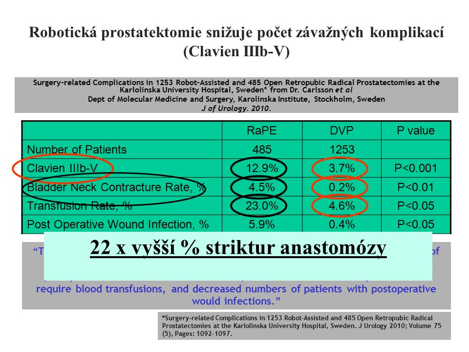 Robotická prostatektomie snižuje počet závažných komplikací (Clavien IIIb-V) RaPERaPEDVPP value Number of Patients4851253 Clavien IIIb-V12.9%3.7%P<0.001 Bladder Neck Contracture Rate, %4.5%0.2%P<0.01 Transfusion Rate, %23.0%4.6%P<0.05 Post Operative Wound Infection, %5.9%0.4%P<0.05 Surgery-related Complications in 1253 Robot-Assisted and 485 Open Retropubic Radical Prostatectomies at the Karlolinska University Hospital, Sweden* from Dr.