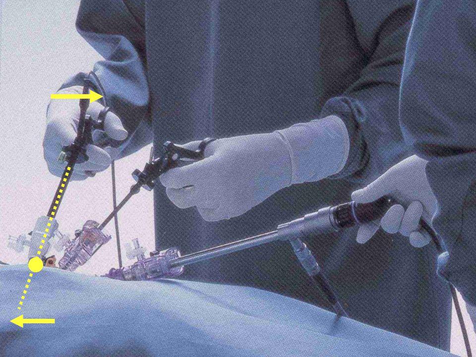 Robotická prostatektomie prokázala lepší výsledky BJU Int.