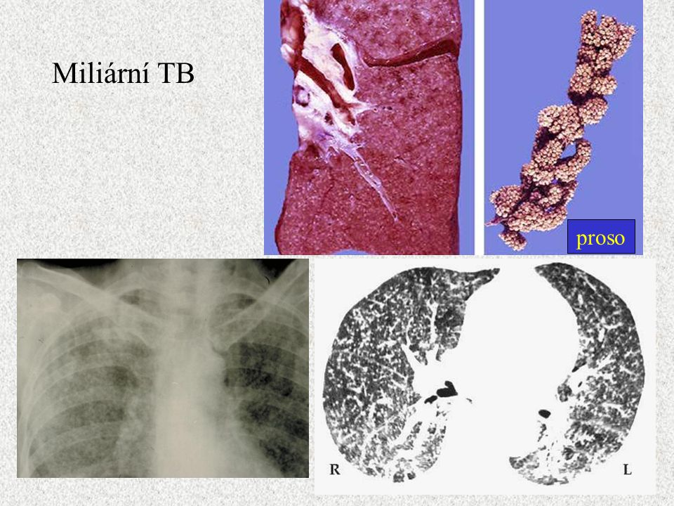 Proso proso Miliární TB