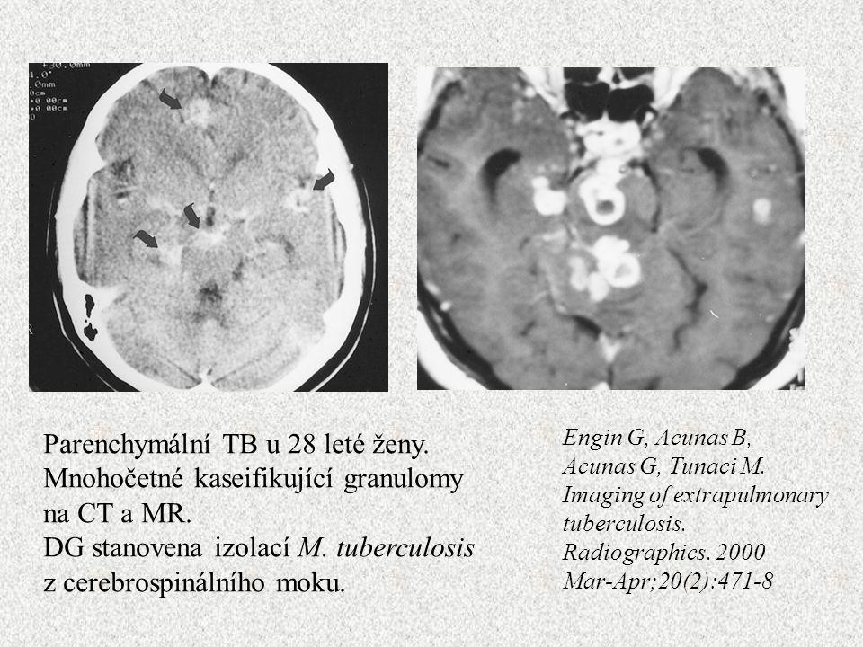 Engin G, Acunas B, Acunas G, Tunaci M. Imaging of extrapulmonary tuberculosis.