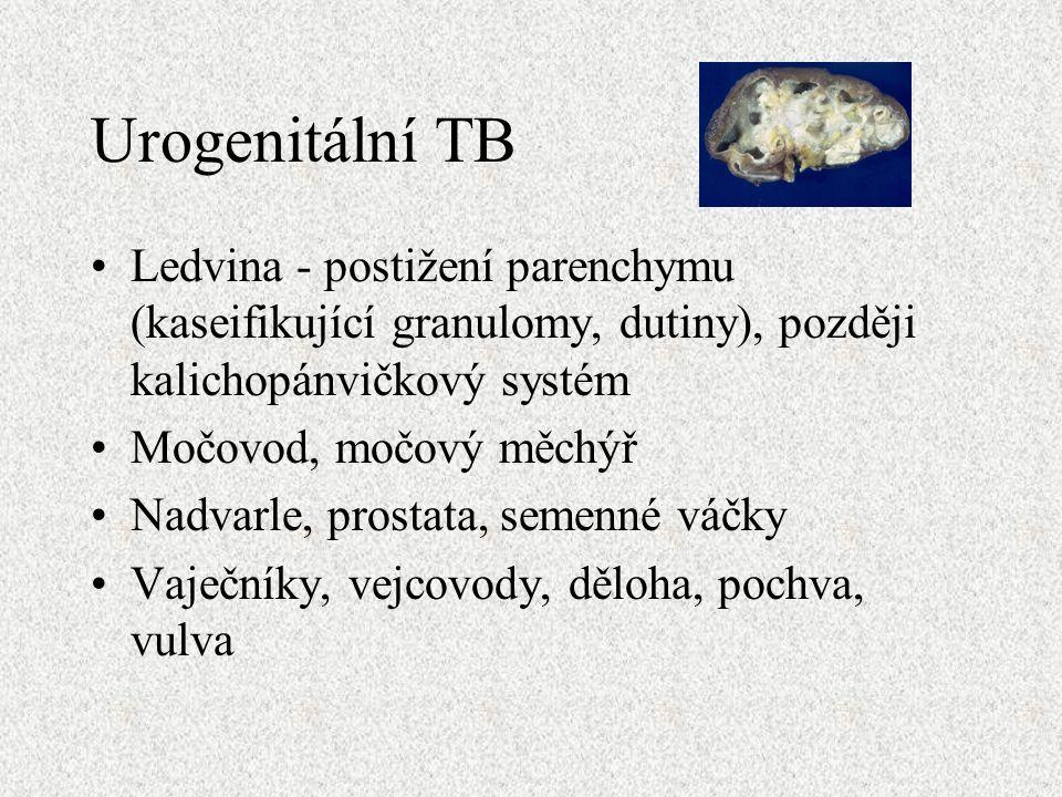 Urogenitální TB Ledvina - postižení parenchymu (kaseifikující granulomy, dutiny), později kalichopánvičkový systém Močovod, močový měchýř Nadvarle, prostata, semenné váčky Vaječníky, vejcovody, děloha, pochva, vulva