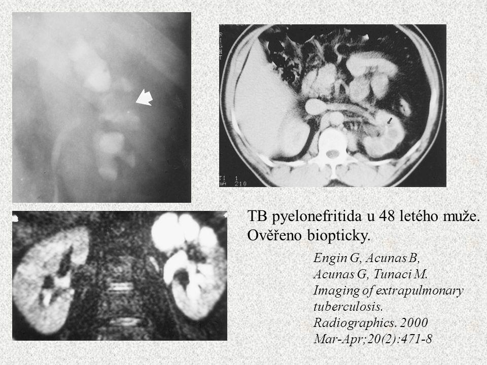 TB pyelonefritida u 48 letého muže. Ověřeno biopticky.