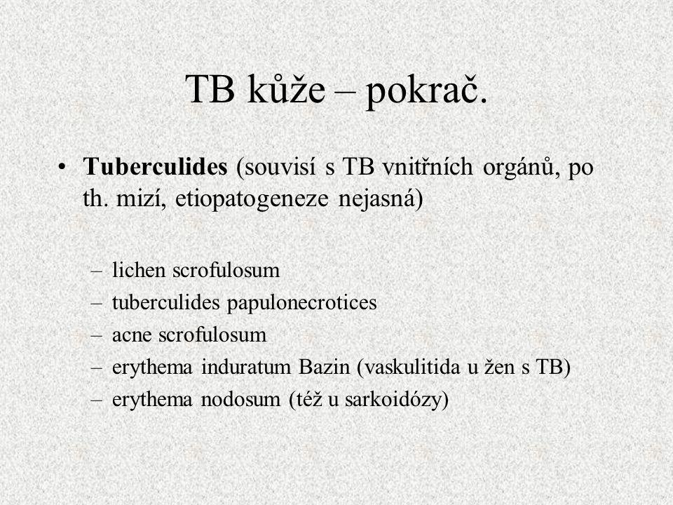 TB kůže – pokrač. Tuberculides (souvisí s TB vnitřních orgánů, po th.
