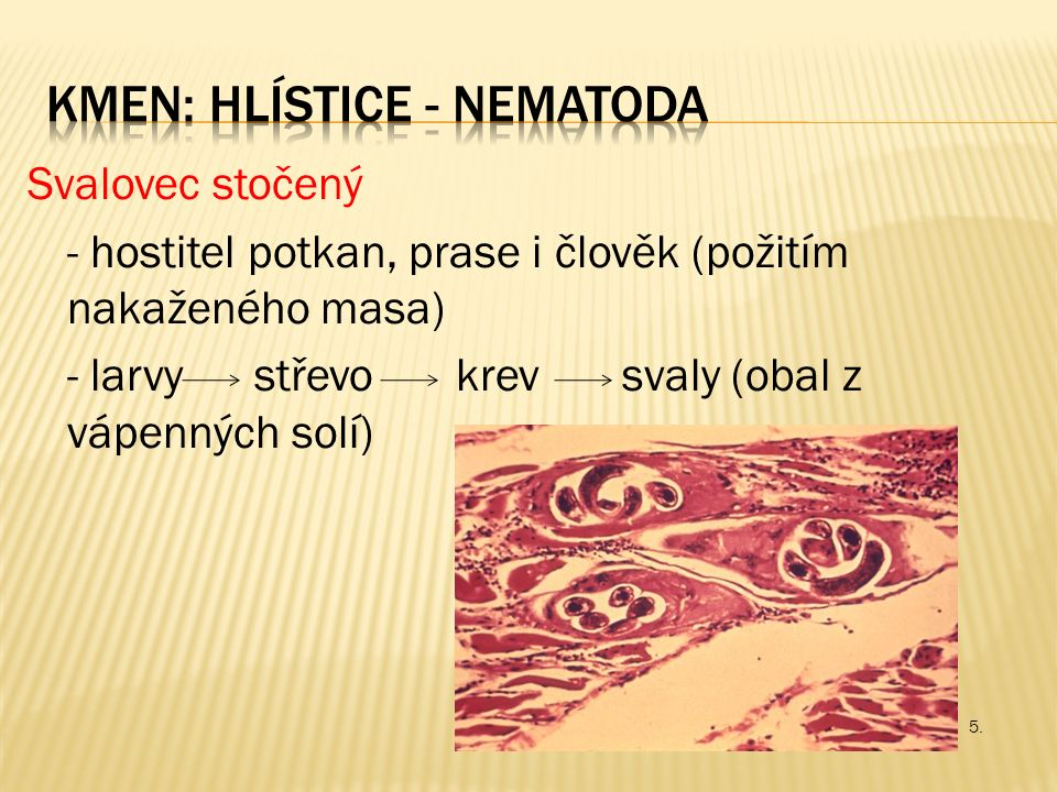 Svalovec stočený - hostitel potkan, prase i člověk (požitím nakaženého masa) - larvy střevo krev svaly (obal z vápenných solí) 5.