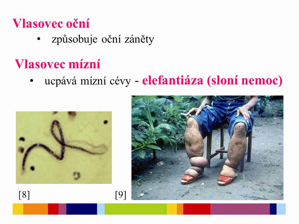 Vlasovec oční způsobuje oční záněty Vlasovec mízní ucpává mízní cévy - elefantiáza (sloní nemoc) [8][9]
