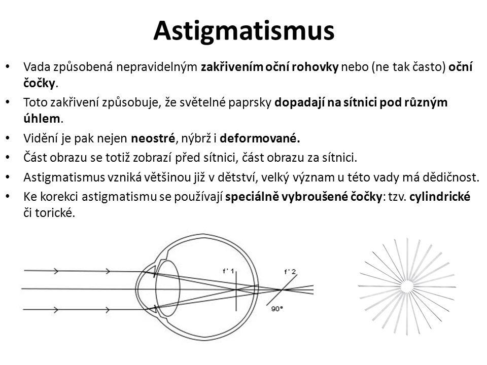 Astigmatismus Vada způsobená nepravidelným zakřivením oční rohovky nebo (ne tak často) oční čočky.