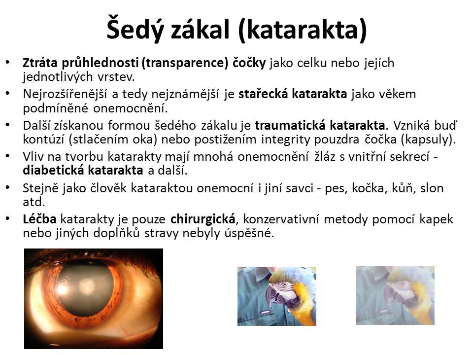 Stařecká vetchozrakost (presbyopia) Věkem podmíněná získaná ztráta elasticity čočky a s tím spojená ztráta akomodace.