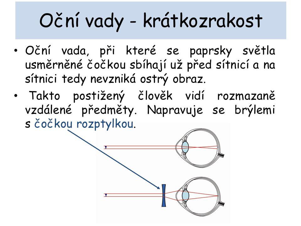 Oční vady - krátkozrakost Oční vada, při které se paprsky světla usměrněné čočkou sbíhají už před sítnicí a na sítnici tedy nevzniká ostrý obraz.