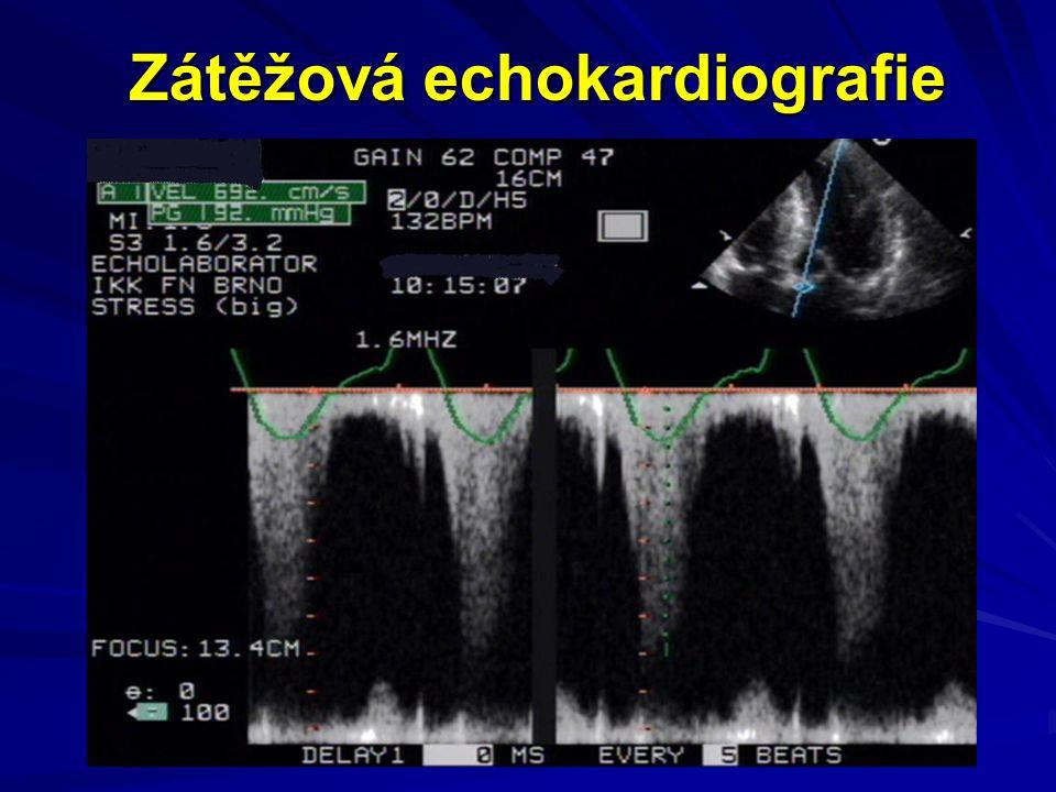 Popis případu EKG HOLTER bez komplexních forem kom.