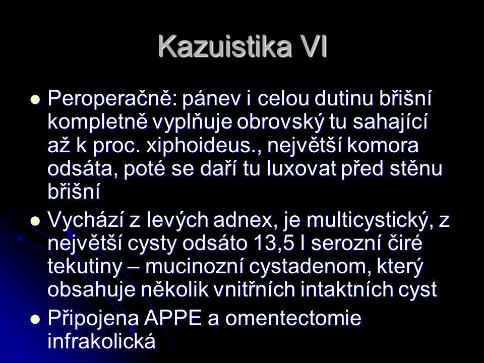 Kazuistika VI Peroperačně: pánev i celou dutinu břišní kompletně vyplňuje obrovský tu sahající až k proc.