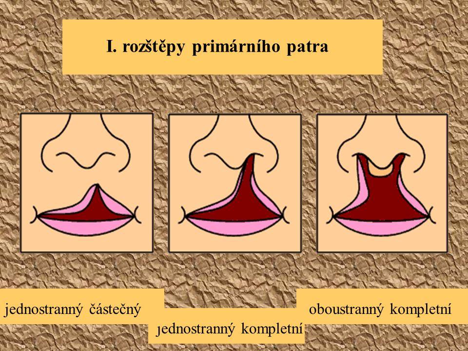 I. rozštěpy primárního patra oboustranný kompletní jednostranný kompletní jednostranný částečný