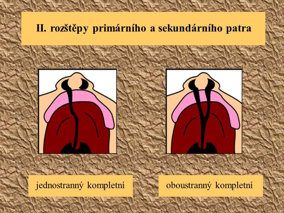 II. rozštěpy primárního a sekundárního patra jednostranný kompletníoboustranný kompletní