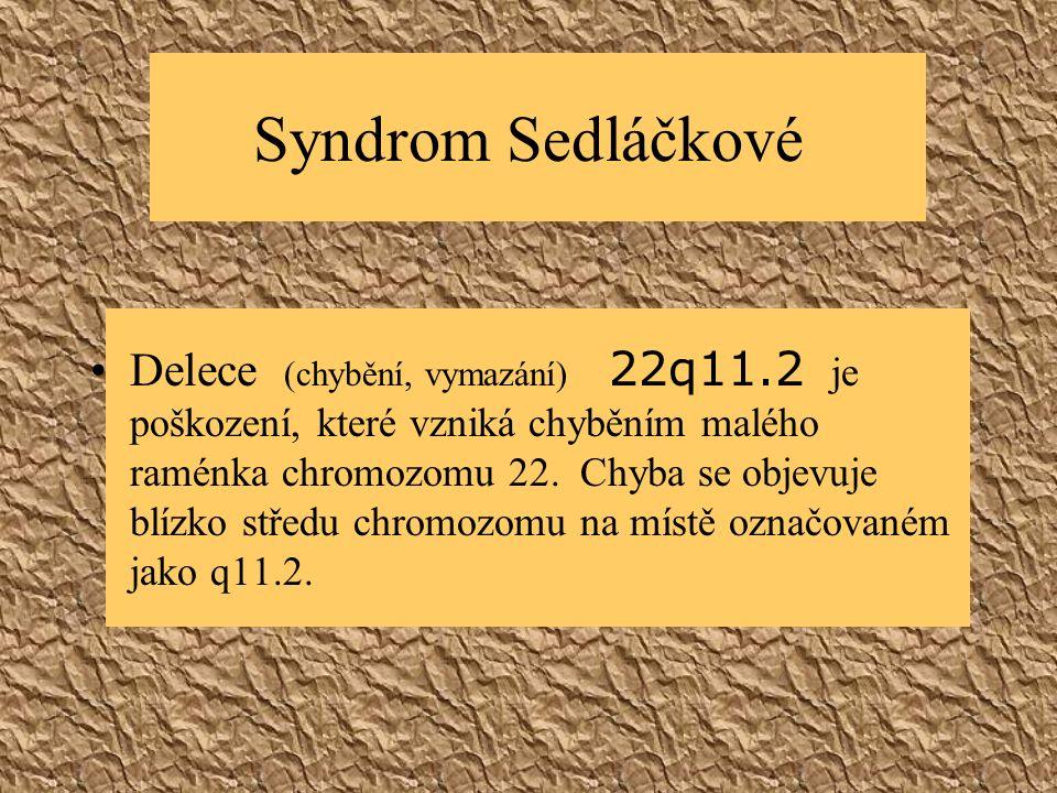 Syndrom Sedláčkové Delece (chybění, vymazání) 22q11.2 je poškození, které vzniká chyběním malého raménka chromozomu 22. Chyba se objevuje blízko střed
